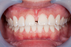Frenectomy surgery performed at John A. Lindsay, DDS Periodontics & Implantology.
